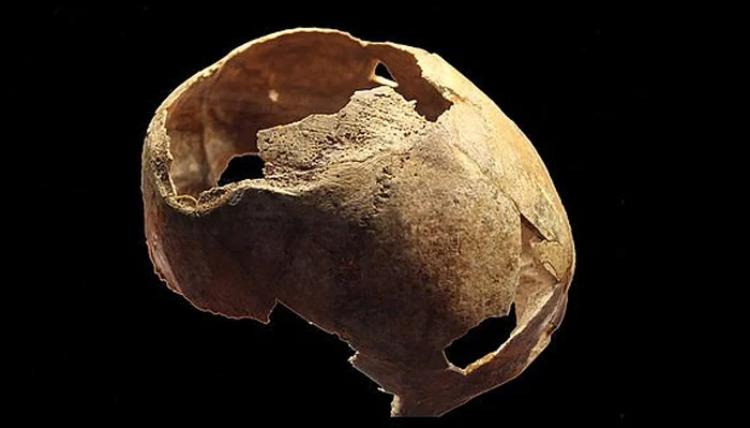 5 ہزار سال قدیم آپریشن ہوئی کھوپڑی دریافت